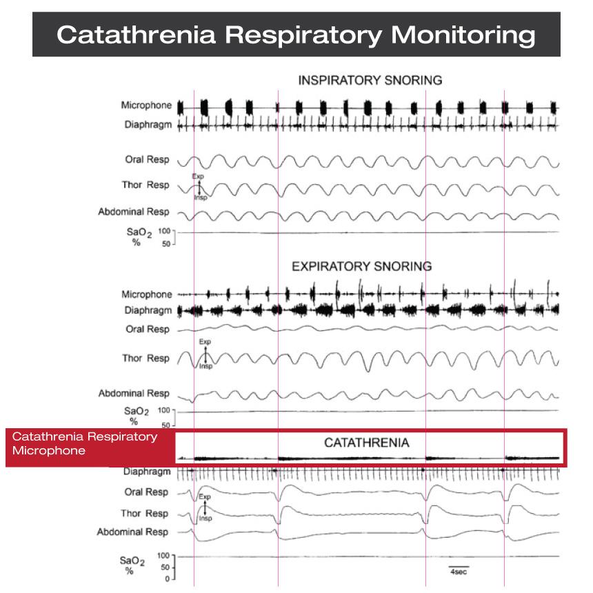 CatathreniaRespiratoryMonitoring
